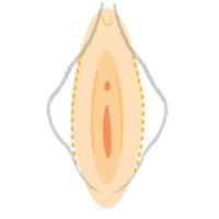 vagina estetica vaginal2 Dr Roca System
